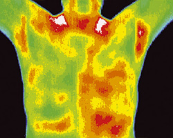 Thermography shot 1a
