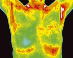 Thermography shot 1b