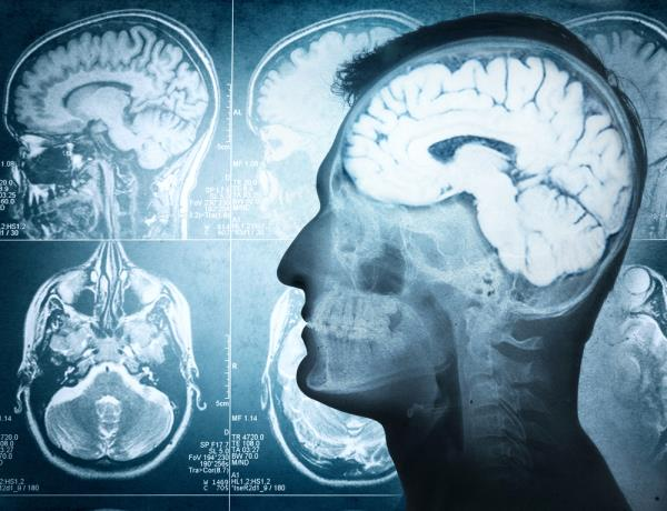 increasing your personal odds of brain cancer survival