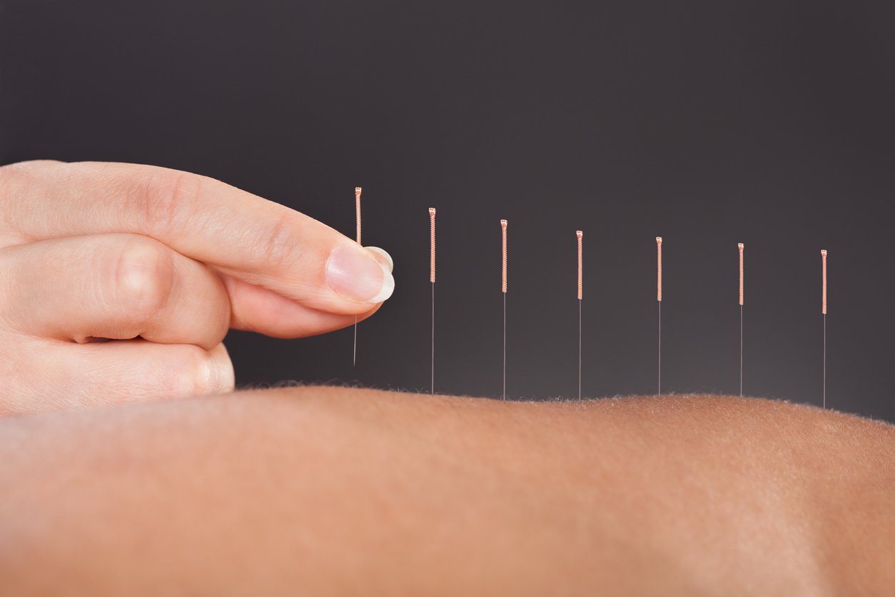 TCM, Acupuncture and Cancer Treatment
