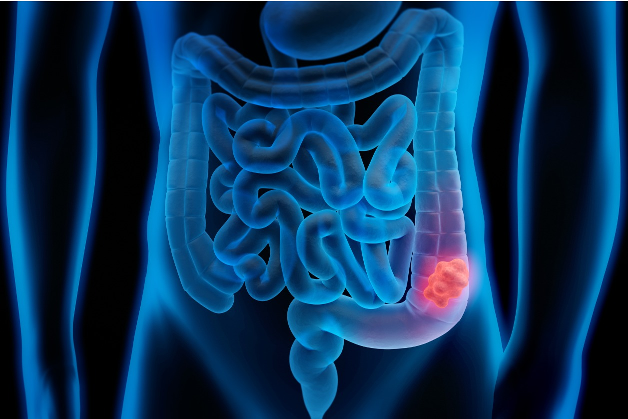 Could Fecal Transpalants correct colorectal cancer?