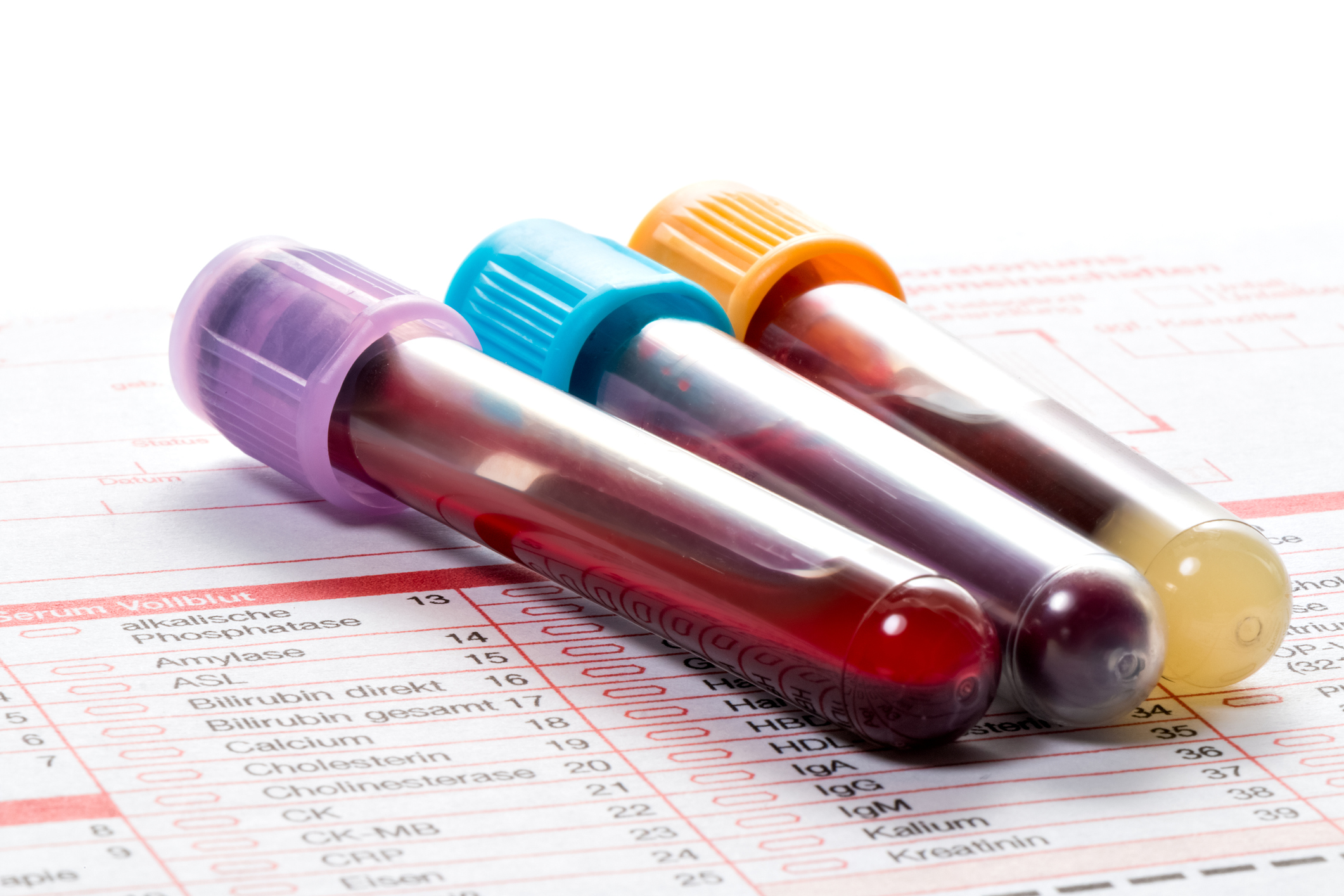 Blood test could soon warn of breast cancer risk