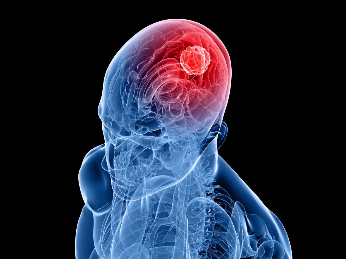 Ibudilast increases effectiveness of temozolomide in brain cancer
