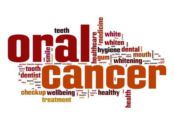 Oral Cancer or Mouth cancer; symptoms, causes and treatment alternatives