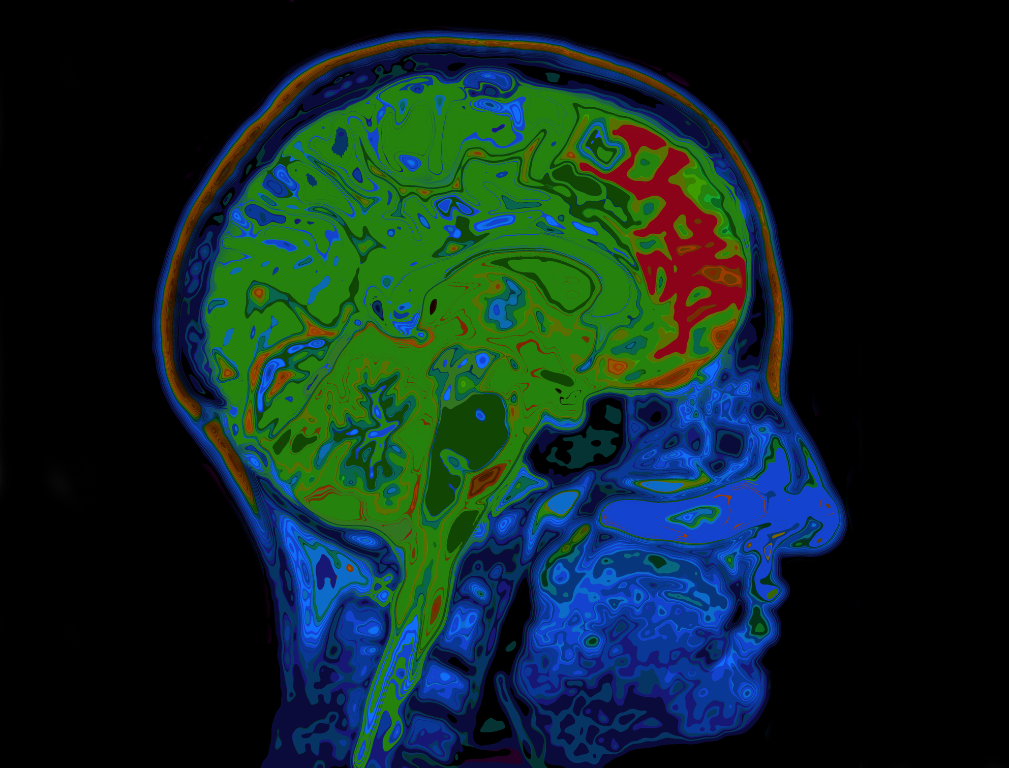 The Latest Treatments for brain tumours