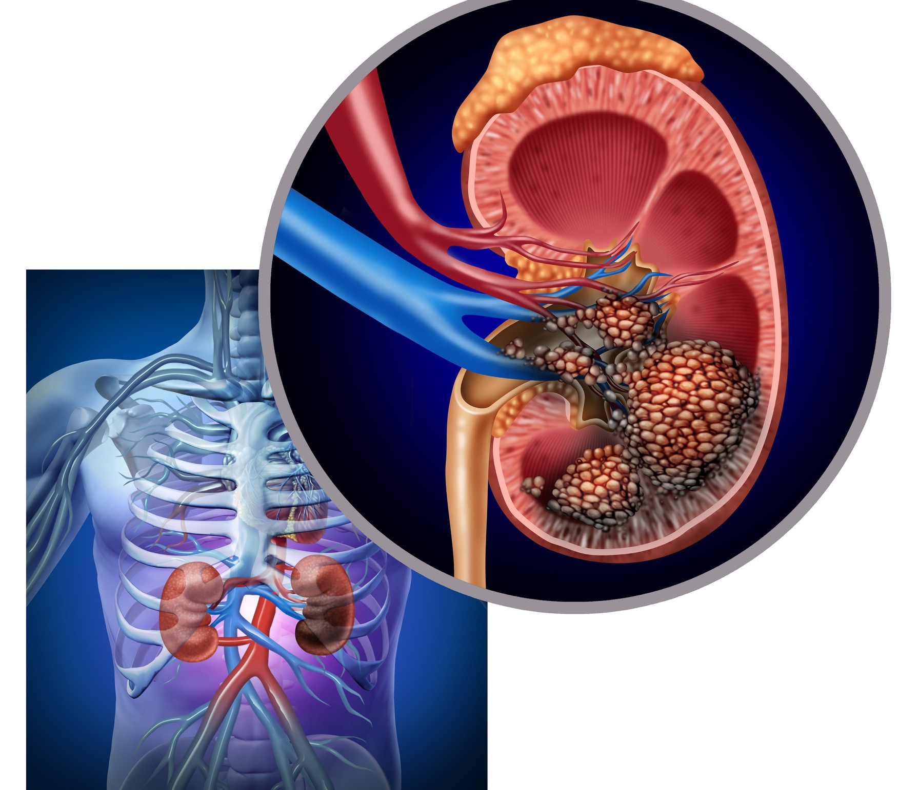 * An Overview of Kidney Cancer - symptoms, causes and treatment alternatives