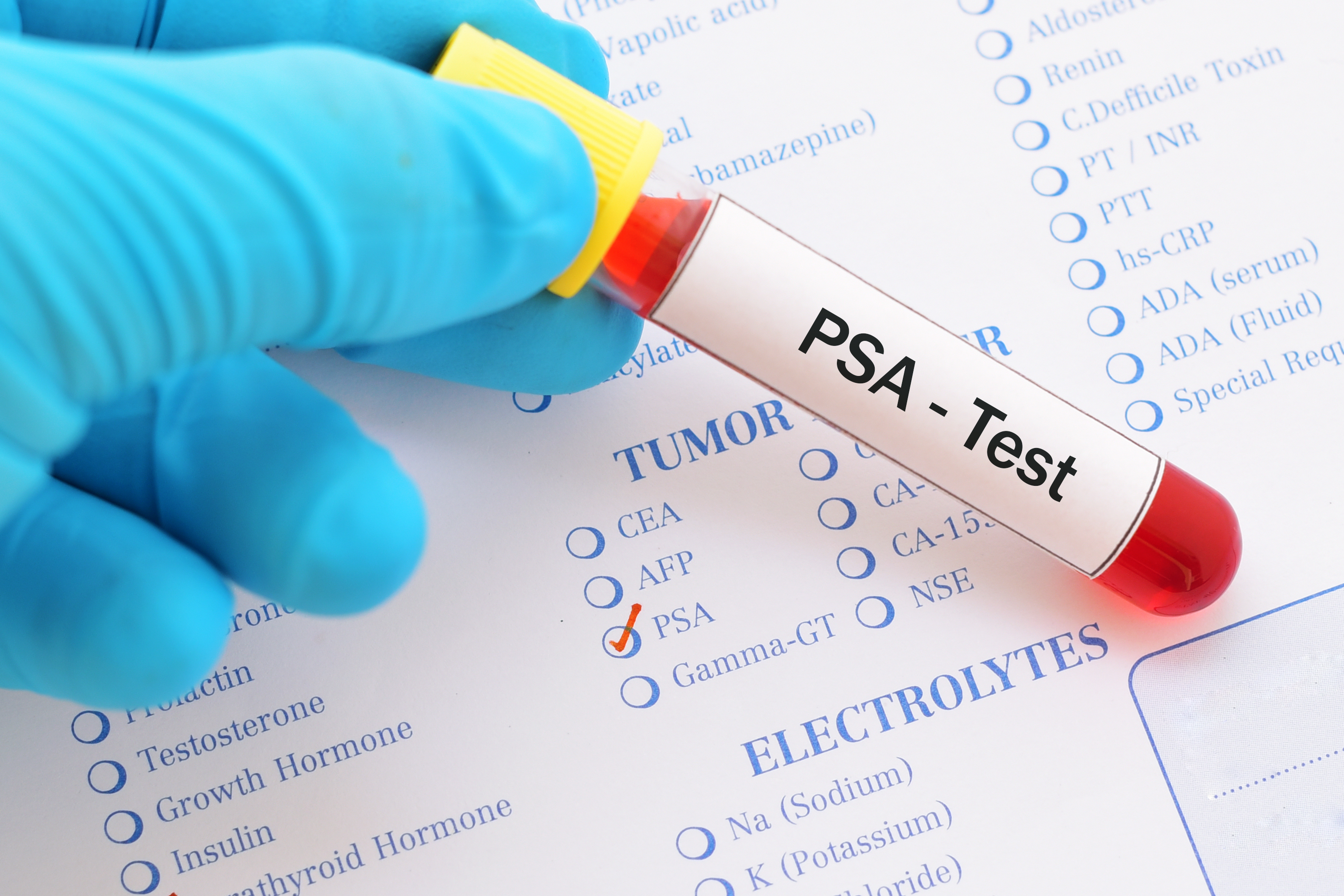 Stanford Professor dubs PSA test - almost useless