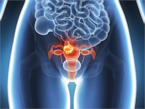 * Endometrial or Womb Cancer - Latest News, Latest Research | CANCERactive